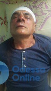 В Измаильском районе избили депутата облсовета