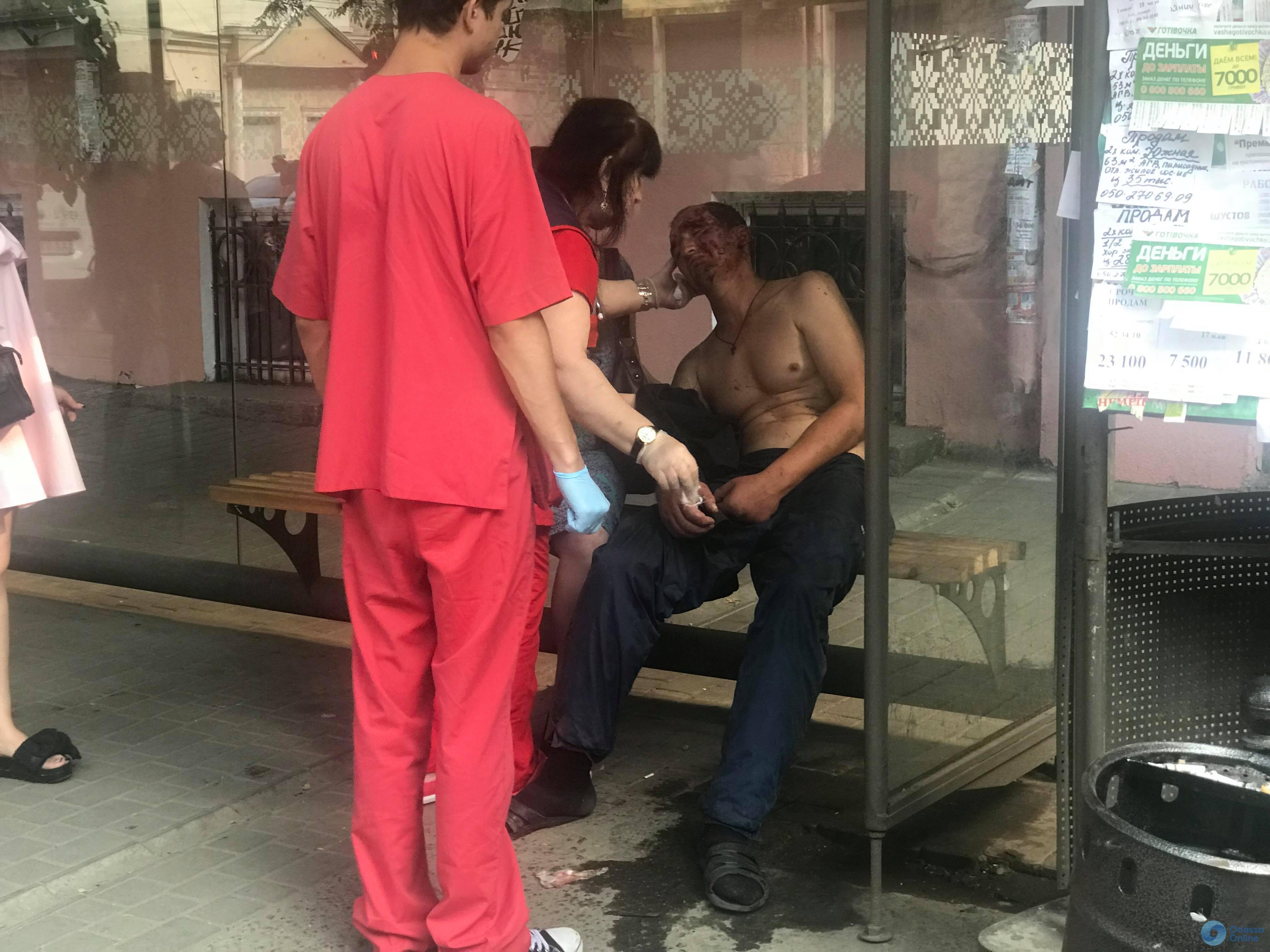 В Одессе мужчина упал со ступенек трамвая и разбил голову