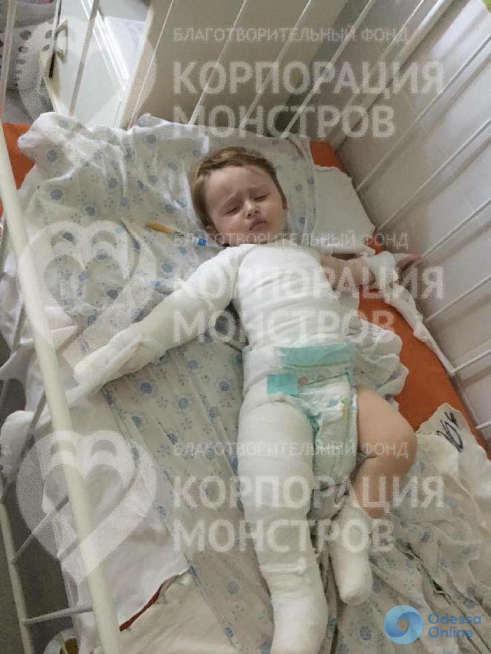 Обварился кипятком: в Одессе прооперировали 9-месячного мальчика