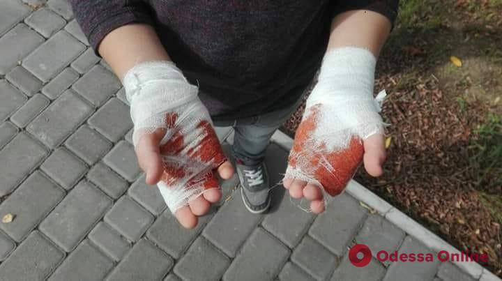 Обожгли жидким азотом: под Одессой детское шоу закончилось травмами