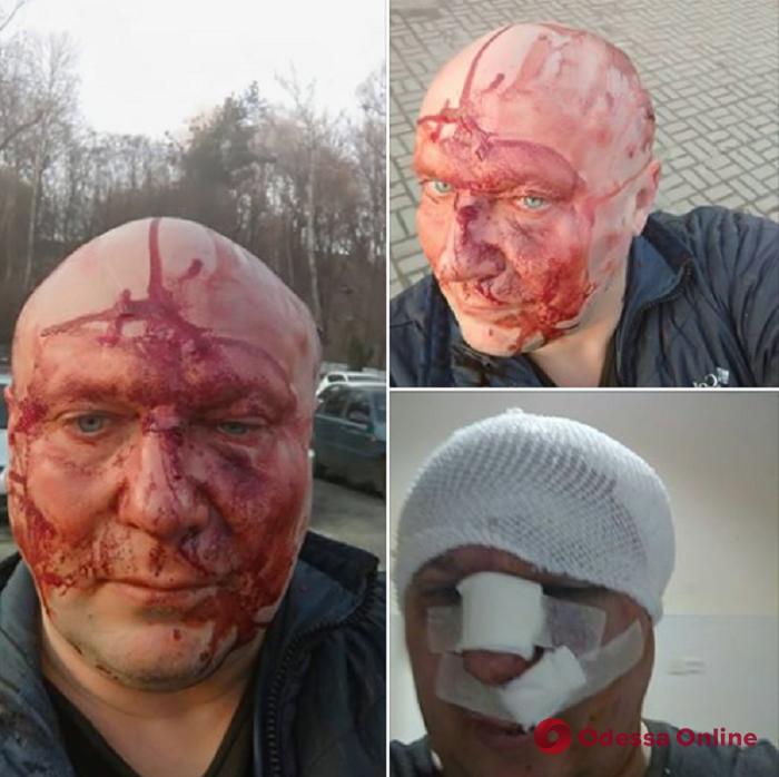 Убивал в Одессе бездомных собак: в столице избили одиозного догхантера