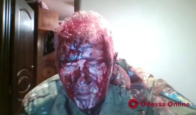 Избитый в Подольске ветеран АТО: «Это был заказ на убийство»