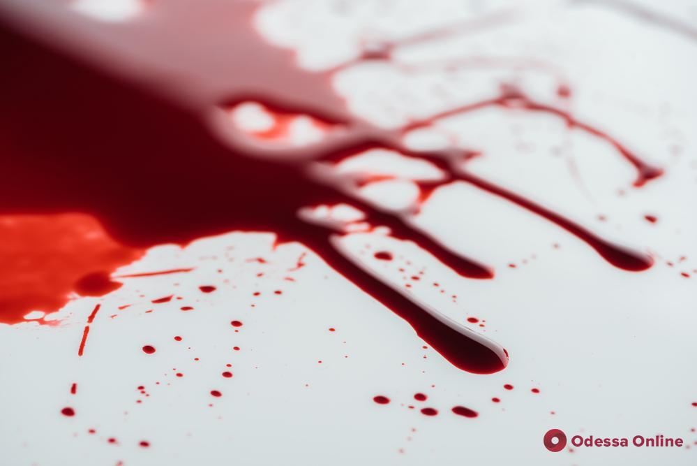Жительницу Одесской области застрелили в собственном доме