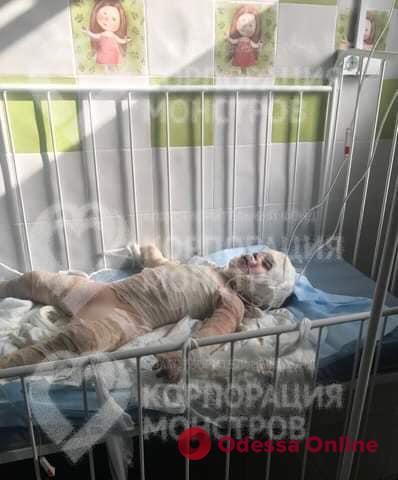 Одесские волонтеры рассказали о состоянии получившего тяжелые ожоги трехлетнего малыша