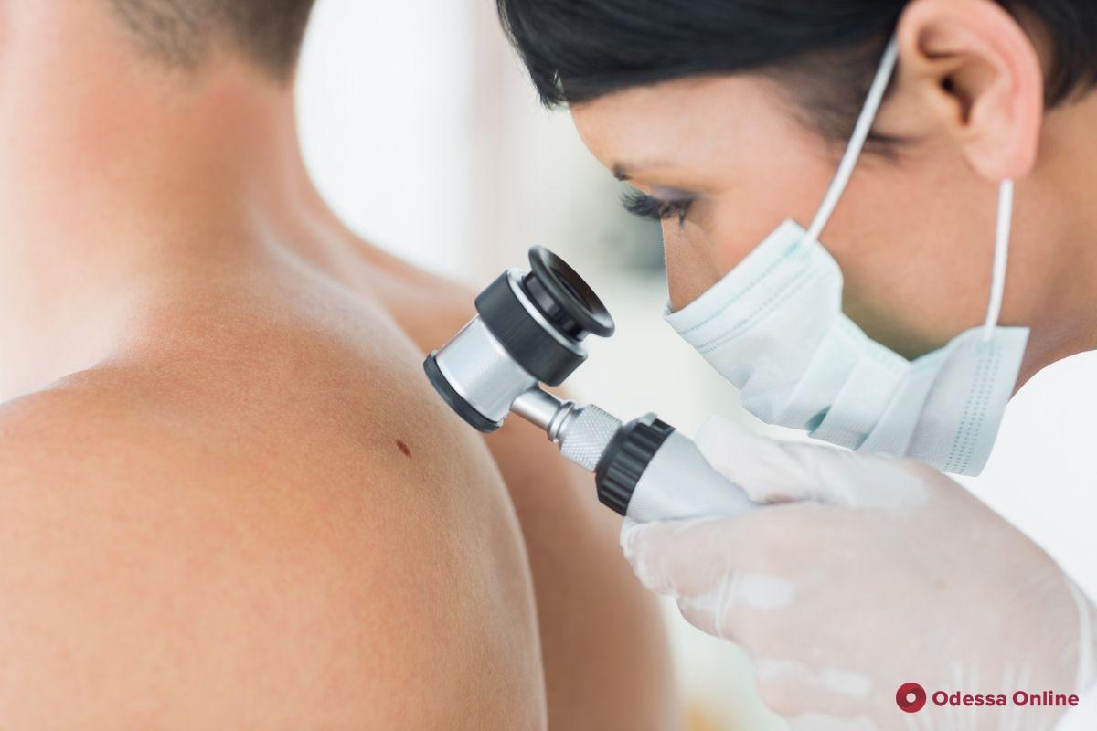Профилактика меланомы кожи: одесситов приглашают обследовать родинки